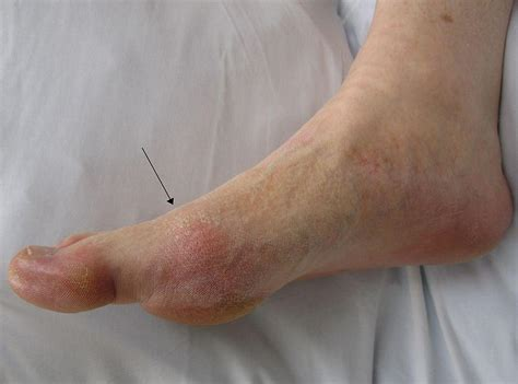 Gout (Uric Acid Crystals in Joints) and Gouty Arthritis